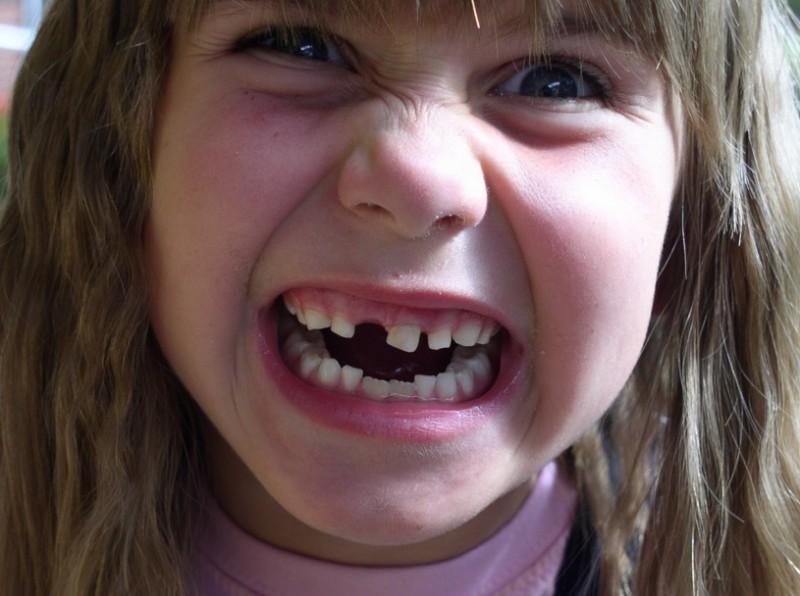 criança-dente-leite