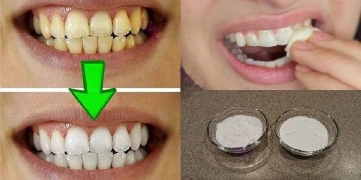clarear os dentes