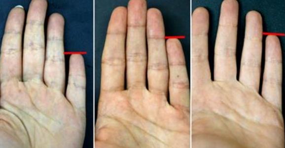 Dedo Mindinho: Incrível, o tamanho e a forma dele revela a pessoa que você é!