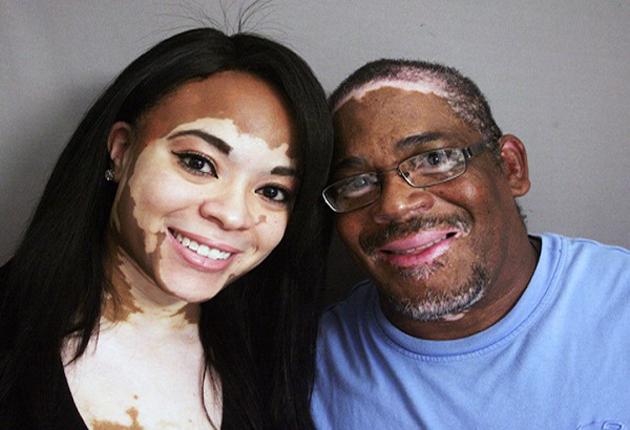 O mundo comemora: Médicos cubanos conseguiram encontrar a cura para o vitiligo!