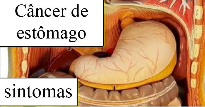 sintomas do câncer de estomago