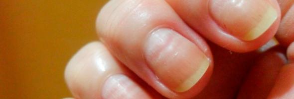 10 alertas que as suas unhas podem te mostrar