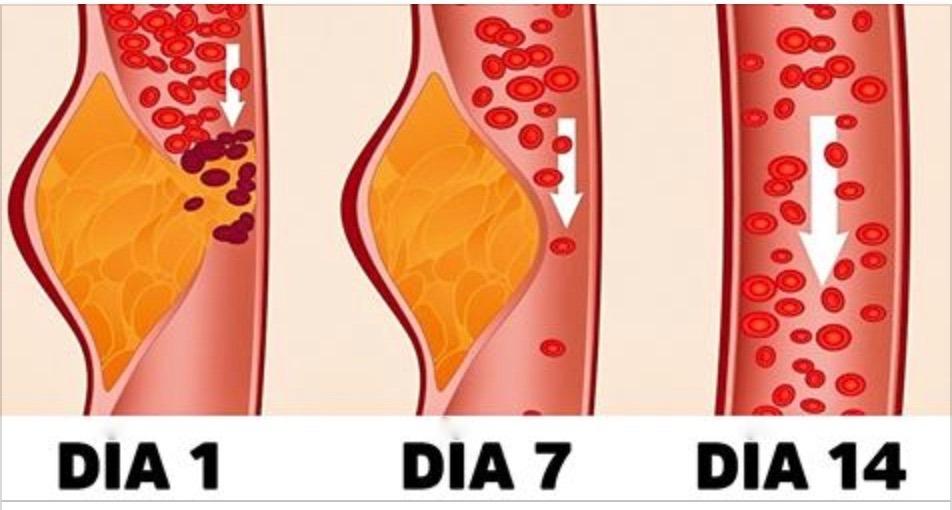 dieta_dash.jpg